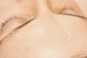 close-up of accupuncture needles in a woman's forehead